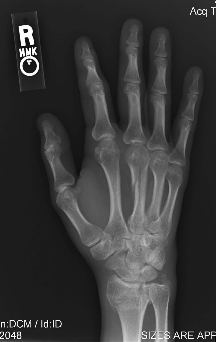 fogyás csonttörés után)