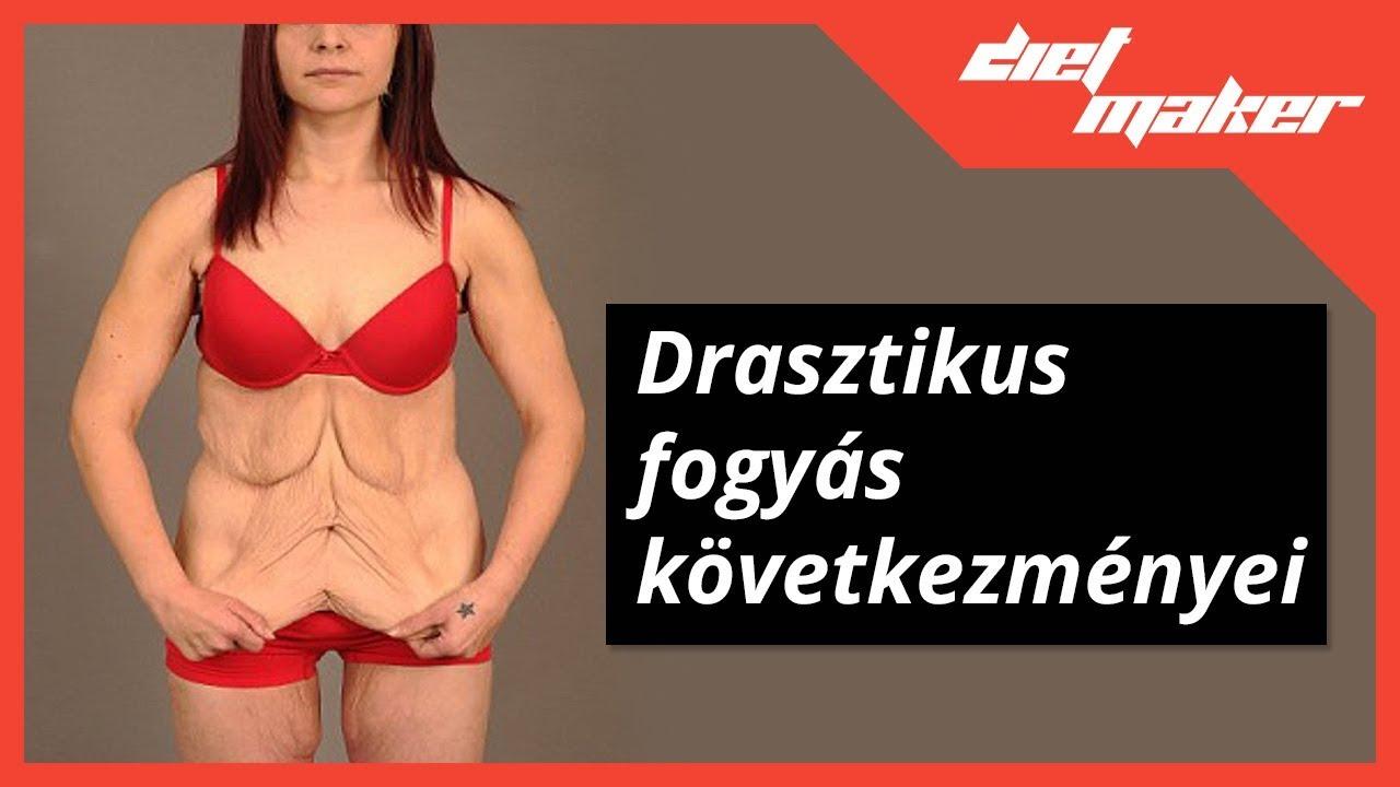 fogyókúra útmutató elhízott)