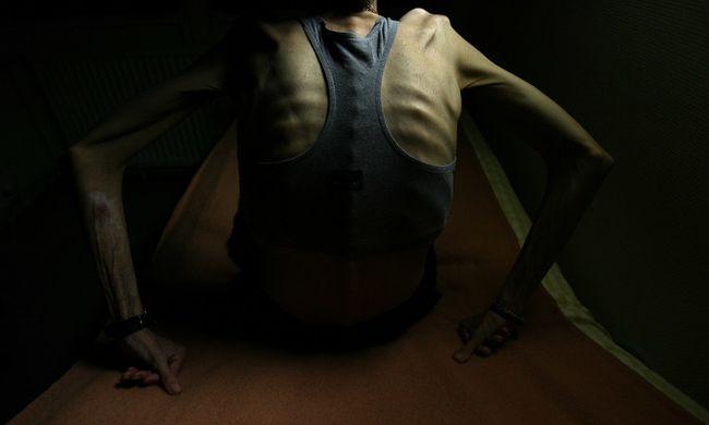 fogyasszon biztonságosan anorexia után)