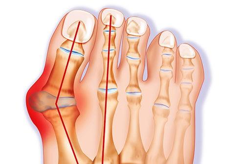 a lábak zsírvesztésének módjai