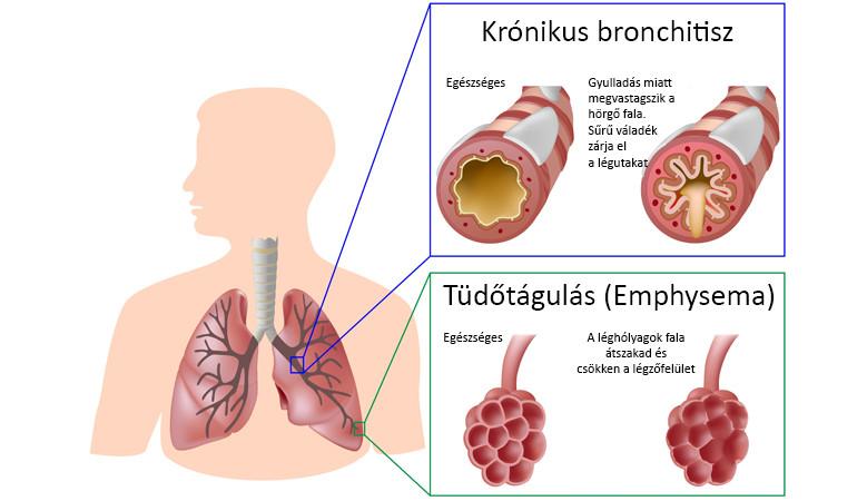 emphysema fogyást okozhat eco slim vélemények fórumok