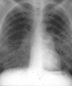 árnyék a tüdő fogyására