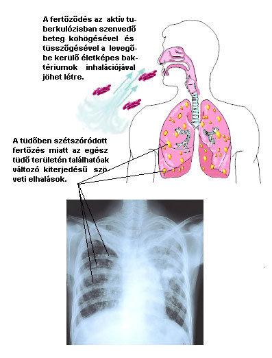 A tbc – Mit kell róla tudni?