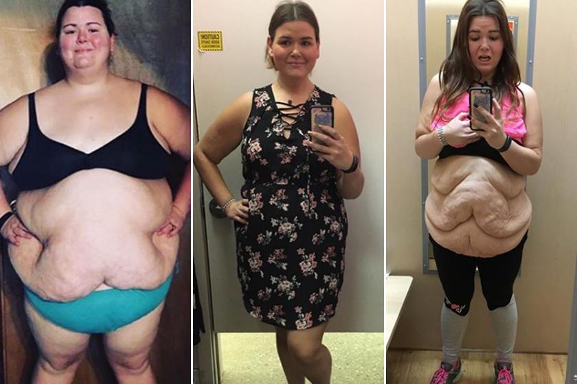 hogyan fogy a túlsúlyos ember)