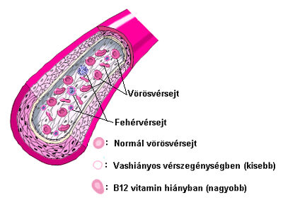 a sarlósejtes vérszegénység okoz-e fogyást)