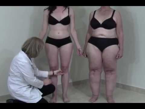 zonisamid fogyás elhízott felnőtteknél)