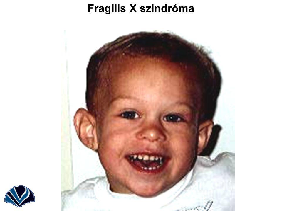 törékeny x szindróma és fogyás