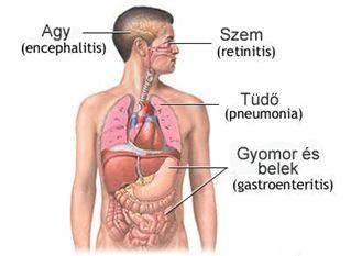Vírusos Hepatitisz - Budai Egészségközpont