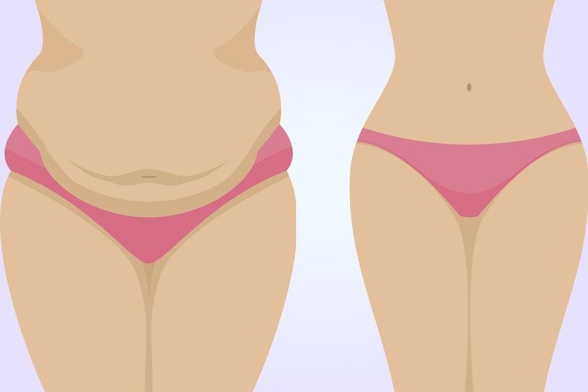 Mennyire lehet eltávolítani a zsírt a hasból
