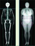 rheumatoid arthritis fogyás mellékhatások