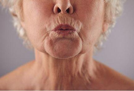 vonalak a száj körül fogyás után)
