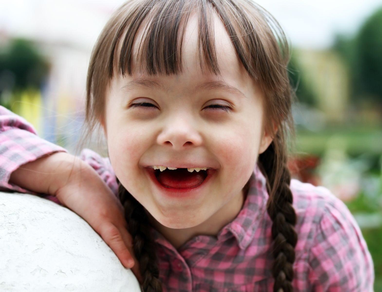 A Down-szindróma