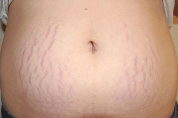 mikor jelentkeznek a striák fogyás fogyasszon biztonságosan anorexia után