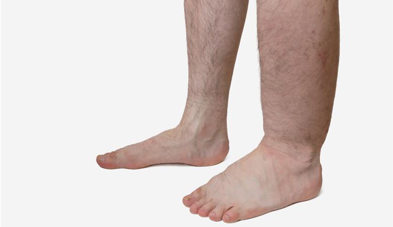 legjobb módja a lábak zsírvesztésének két hónapos fogyás eredményei