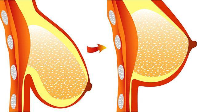 Fogyás a csípőn, Csípőkarcsúsító gyakorlatok - Fogyókúra | Femina