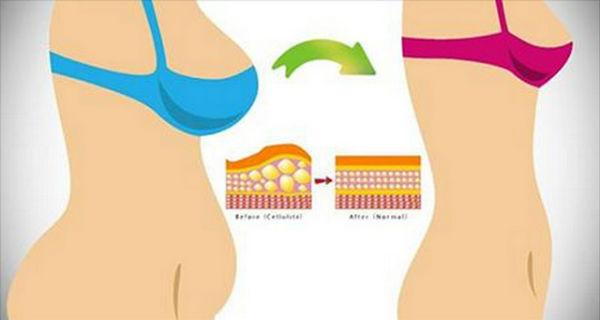 Hogyan lehet eltávolítani a has zsír. Kapcsolódó cikkek