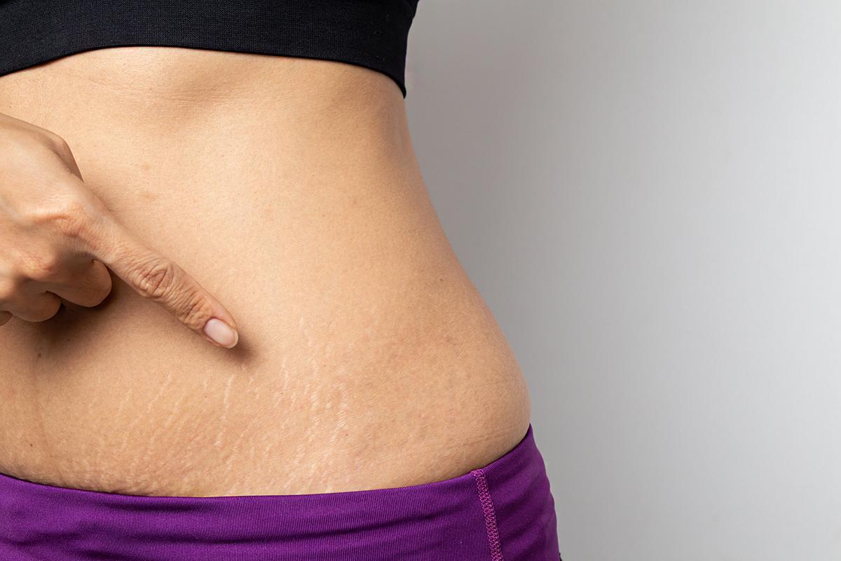 súlycsökkenés vs súlygyarapodás striák légsütő fogyás
