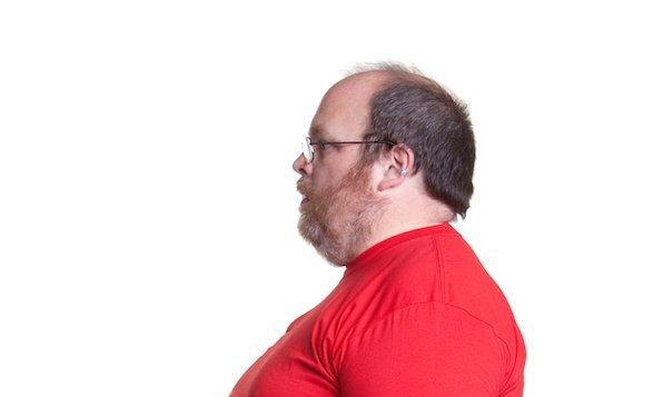 szakállas sárkánynak fogynia kell