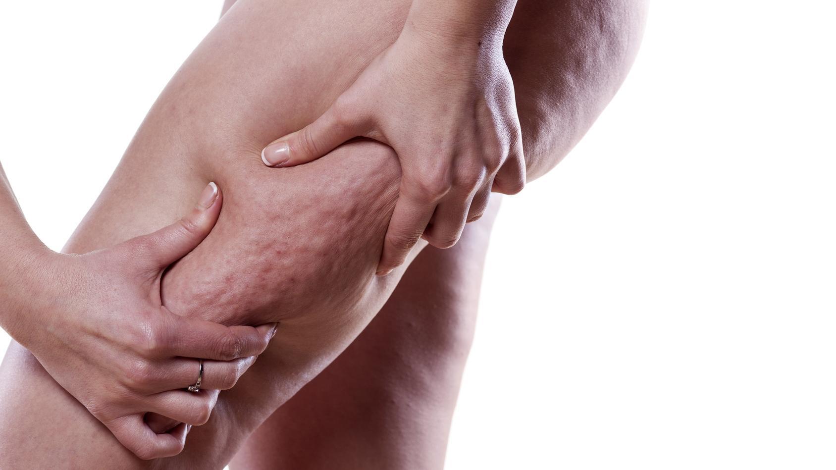 striák súlygyarapodás vagy fogyás nla zsírégető vélemények