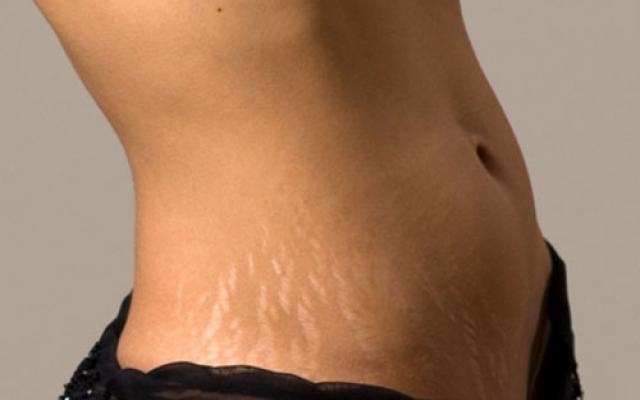 súlycsökkenés vs súlygyarapodás striák hogyan lehet karcsúsítani 1 héten belül